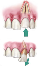 First Visit to Center for Endodontics? What to Expect